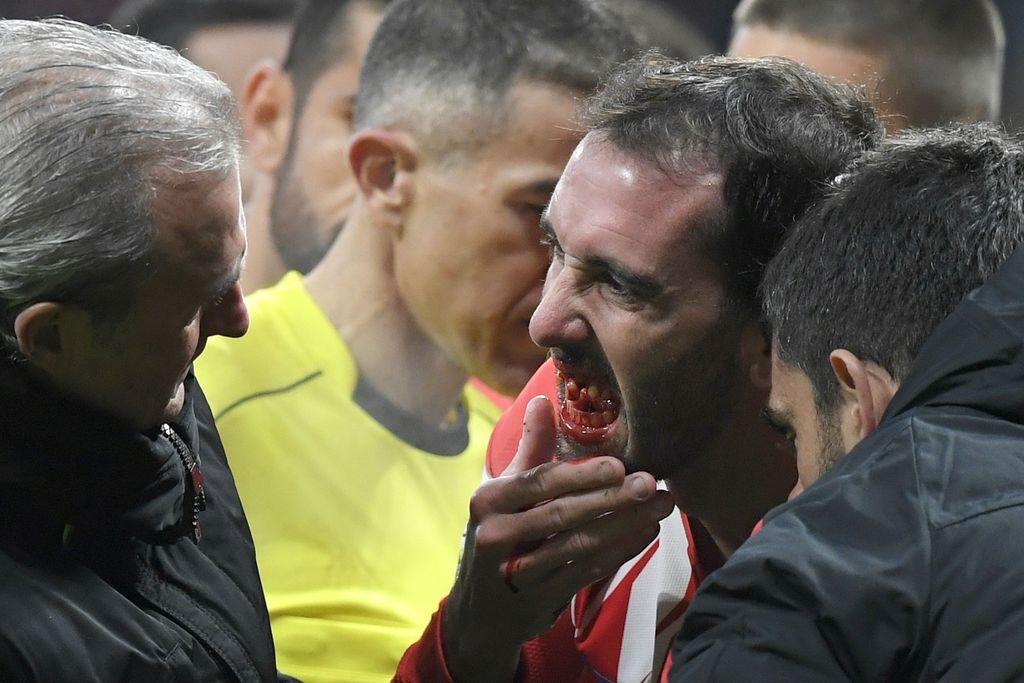 Diego Godin (Foto: AFP)