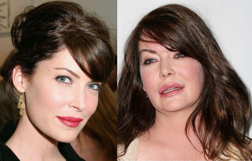 Slavne žene koje su bile ljepše prije plastične kirurgije - 1