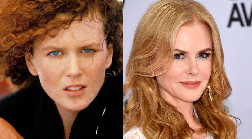 Nekad i sad: Slavne žene koje su povećale usne - 7