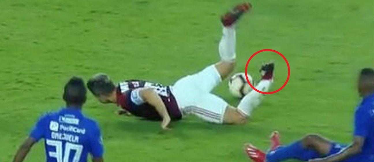 Diegova ozljeda (Foto: Screenshot)