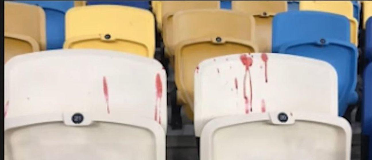 Krvave sjedalice na stadionu Dinamo Kijeva