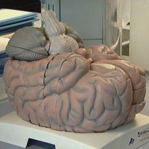 Mozak (Foto: Dnevnik.hr)