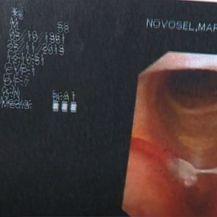 Karcinomi glave i vrata - 2