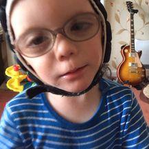 3-godišnji Corey Alway boluje od dva rijetka genetska poremećaja (Foto: Profimedia)