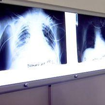 Bolja prevencija, manje oboljelih od raka (Foto: Dnevnik.hr) - 2