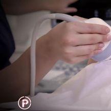 Ultrazvuk trudnice