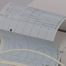 EKG, ilustracija