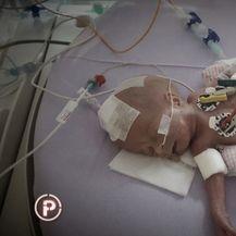 Medicinski uspjeh: najmanja beba preživjela tešku operaciju (Foto: Dnevnik.hr) - 5