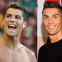 Cristiano Ronaldo prije i nakon što je sredio zube