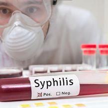 Broj oboljelih od sifilisa u Europi porastao za 70% (Foto: Getty Images)