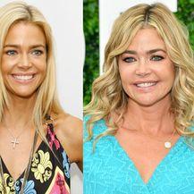 Slavne žene prije i nakon plastičnih operacija - 1