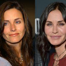 Slavne žene prije i nakon plastičnih operacija - 7