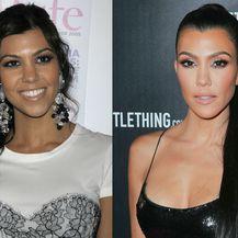 Kourtney Kardashian operirala je grudi