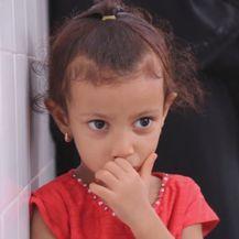 Djeca u Jemenu trebaju pomoć (Foto: Dnevnik.hr) - 4