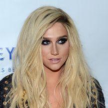 Kesha (Foto: AFP)