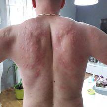 Na leđima su stotine uboda (FOTO: Ivan Zgrebec) - 2
