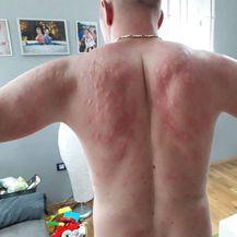 Na leđima su stotine uboda (FOTO: Ivan Zgrebec) - 4