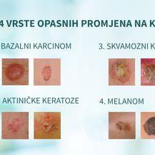 Četirir vrste opasnih promjena na koži