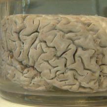 Tjedan mozga (Foto: Dnevnik.hr) - 3