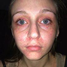 Alergijske reakcije (Foto: Twitter) - 1