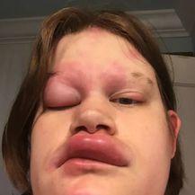 Alergijske reakcije (Foto: Twitter) - 9
