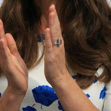 Kate Middleton i njezin flaster (Foto: Profimedia)