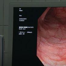 Rak debelog crijeva: Program ranog otkrivanja - 3