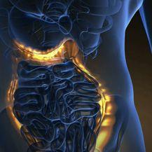 Rak debelog crijeva: Program ranog otkrivanja - 4