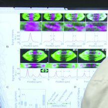 Vrhunski rezultat mladih znanstvenika (Video: Dnevnik Nove TV)