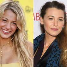 Slavne žene prije i poslije estetske korekcije nosa - 2