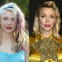 Slavne žene prije i poslije estetske korekcije nosa - 5