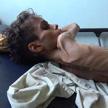 Humanitarna kriza u Jemenu (Foto: AFP)