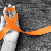 Multipla skleroza, ilustracija (Foto: Gettyimages)