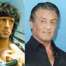 Muškarci s plastičnim operacijama, nekad i sad - 3