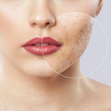 Kako riješiti akne u odrasloj dobi