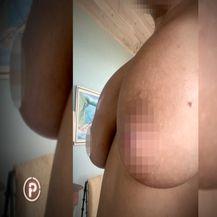 Propala operacija grudi - 1