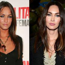 Nekad i sad: Slavne žene koje su povećale usne - 1