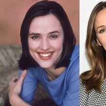 Nekad i sad: Slavne žene koje su povećale usne - 5