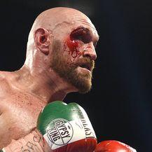 Tyson Fury (Foto: AFP)