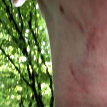 Opasne zamke u šumi - 1