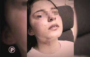 Pretučena 14-godišnjakinja progovorila za Provjereno (Foto: Provjereno) - 9