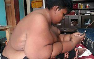 Najdeblji dječak na svijetu smršavio 75 kilograma (Foto: Profimedia)