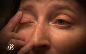 Provjereno donosi bizarnu priču o dirofilariozi - bolesti čiji su prijenosnici komarci (Foto: Provjereno) - 8