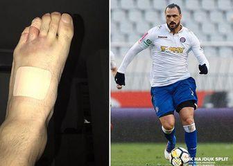 Almeidina ozljeda (Foto: HNK Hajduk Instagram)
