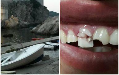 Brutalan napad u Dubrovniku (Foto: Čitatelj/Dnevnik.hr)