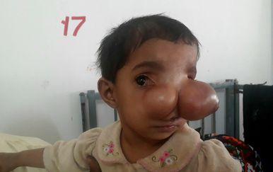 15-mjesečna djevojčica očajnički čeka operaciju koja će joj spasiti život (Foto: Profimedia)