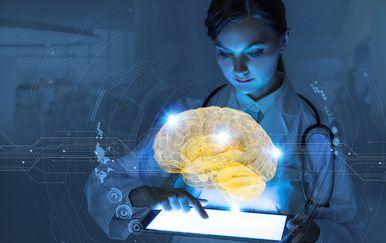 Mozak, ilustracija (Foto: Thinkstock)