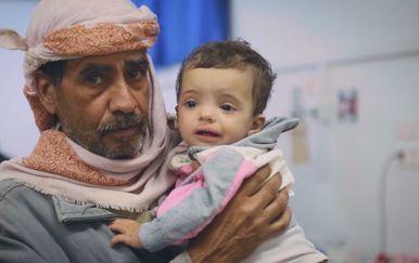 Djeca u Jemenu trebaju pomoć (Foto: Dnevnik.hr) - 1