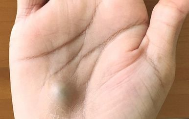 Tijekom posjeta zubaru 27-godišnjak zaradio smrtonosnu infekciju srca, otkrila je kvrga na dlanu (Foto: New England Journal of Medicine)
