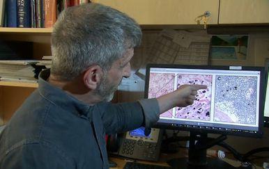 Patolog Neil Theis (Foto: Reuters)